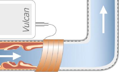 vulcan electronic descaler- Heating and Heat Exchangers